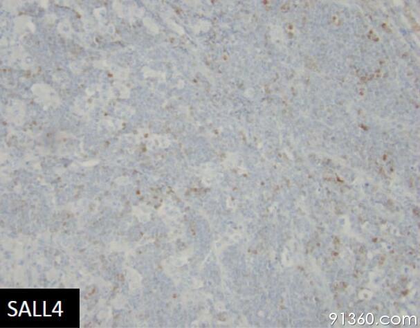 图11 SALL4.jpg