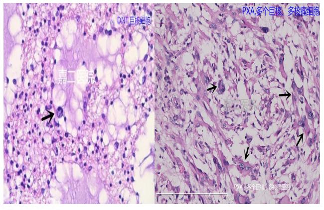 OLC(少突胶质细胞样细胞):具有透明胞浆或胞浆空晕的类似于少