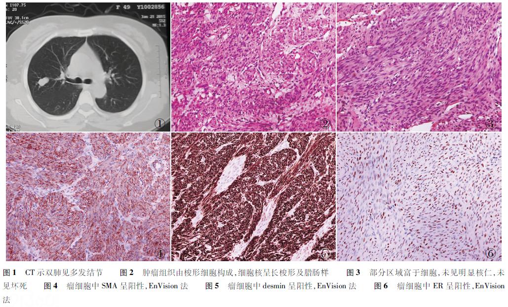 良性转移性平滑肌瘤6例临床病理分析