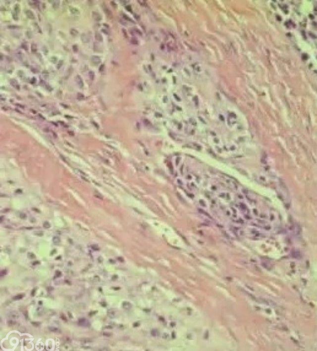 黏液样/圆细胞脂肪肉瘤