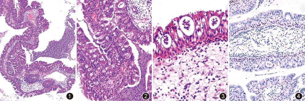 鼻嗜酸性细胞乳头状瘤二例