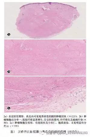 疹样乳癌_【病例报告】发疹性皮肤胶原瘤一例