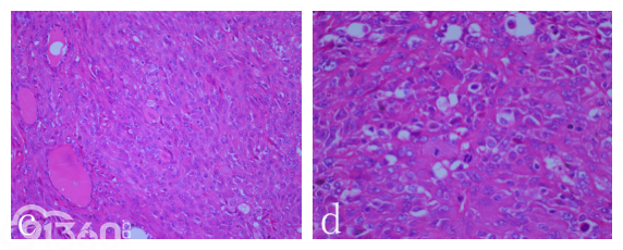 甲状腺未分化癌一例
