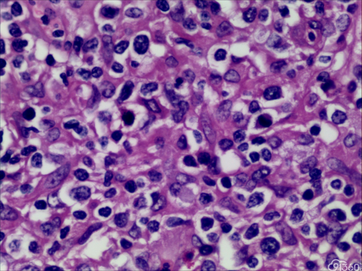 外周T细胞淋巴瘤