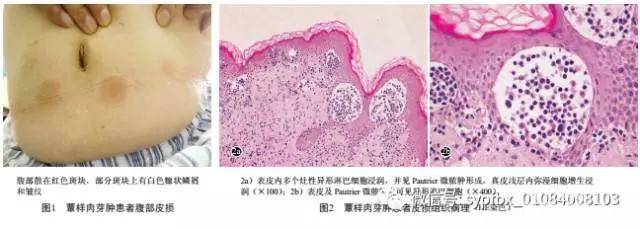 早期蕈样肉芽肿一例