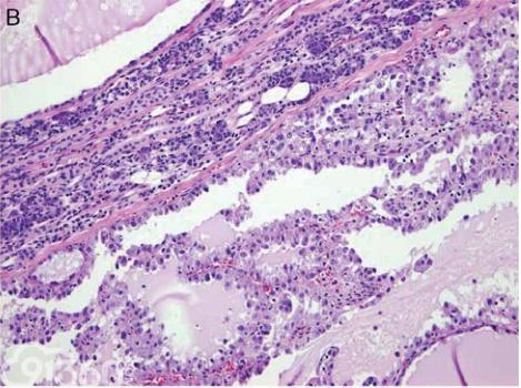 新报道的涎腺肿瘤病理类型