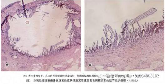 系统性红斑狼疮并发泛发性皮肤钙质沉着症一例