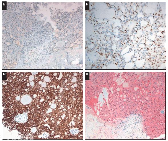 类似高细胞亚型甲状腺乳头状癌的乳腺肿瘤——一种具有独特免疫组化特征和少量频发突变的实性乳头状肿瘤