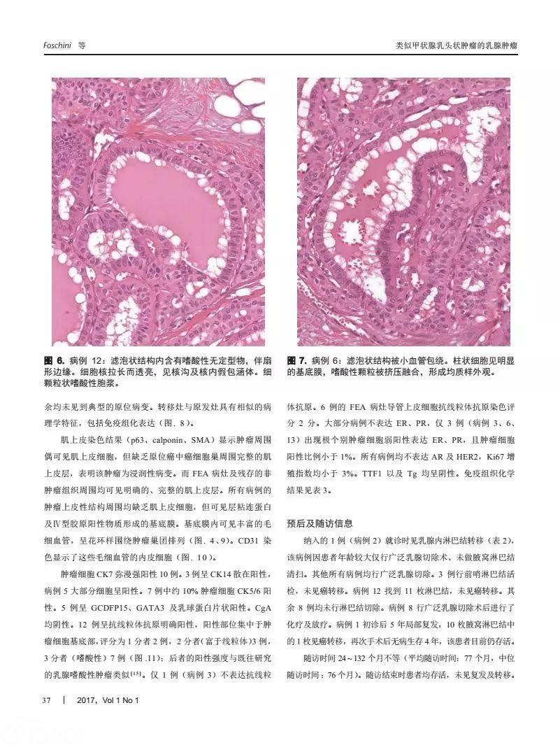 类似甲状腺高细胞亚型乳头状肿瘤的乳腺实性乳头状癌:一种独特的具有惰性生物学行为的浸润性肿瘤