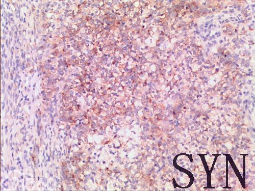 畸胎癌肉瘤