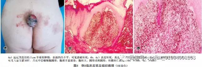 5例少见恶性黑素瘤的临床和组织病理分析