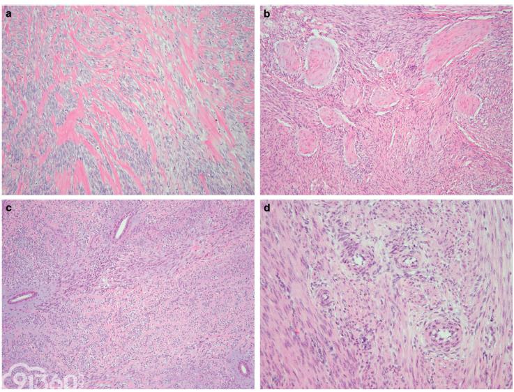 一种新定义的病理类型——ZC3H7B-BCOR基因融合的高级别子宫内膜间质肉瘤:17例病例报道