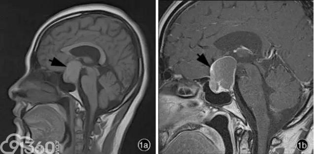罕见的鞍区和鞍上脑室外神经细胞瘤如何与垂体腺瘤等区分鉴别