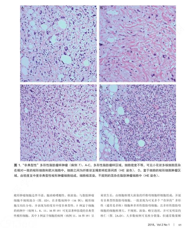 """""""非典型性""""多形性脂肪瘤样肿瘤临床病理、免疫表型和分子遗传学研究,强调其与非典型性梭形细胞脂肪瘤样…"""