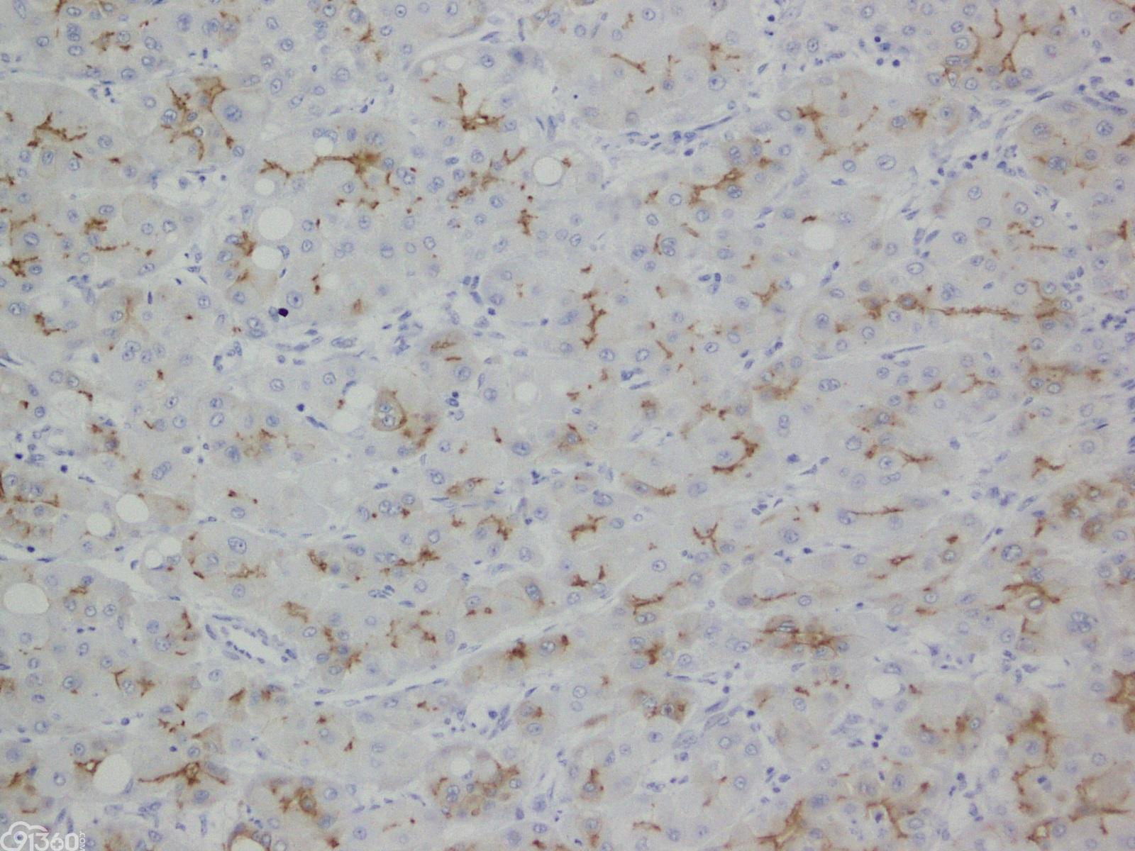 P-糖蛋白在肝细胞癌鉴别诊断中的潜在价值