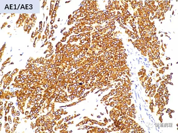 卵巢病灶穿刺活检标本