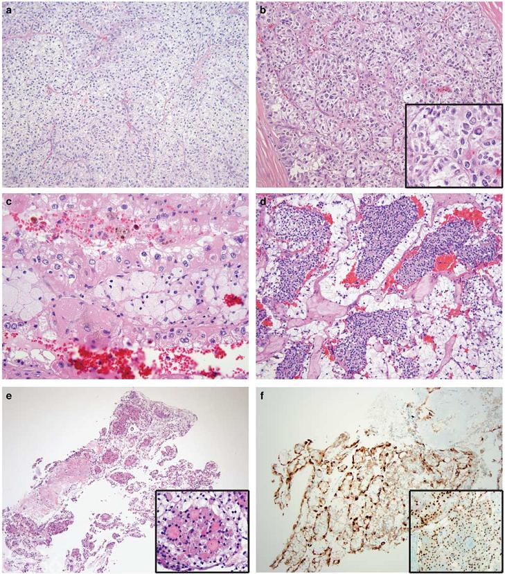 6例TFEB扩增性肾细胞癌和25例MITF易位性肾细胞癌的检测:通过临床TFE3和TFEB FISH检测评估的85例病例的系统形态学分析