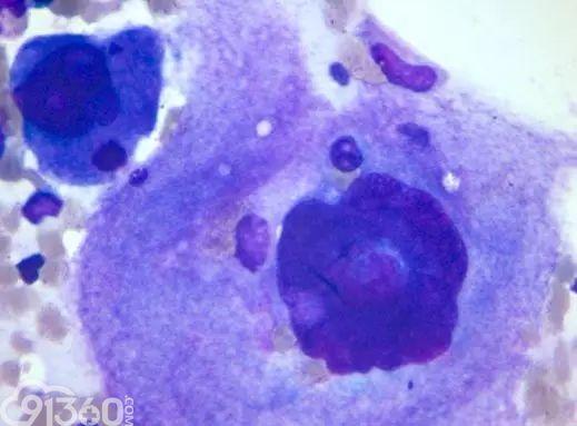 """血栓性血小板减少性紫癜伴巨核细胞""""假吞噬""""现象1例"""