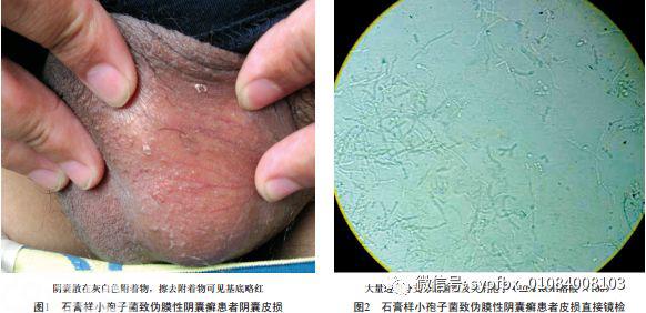 【病例报告】石膏样小孢子菌致伪膜性阴囊癣一例
