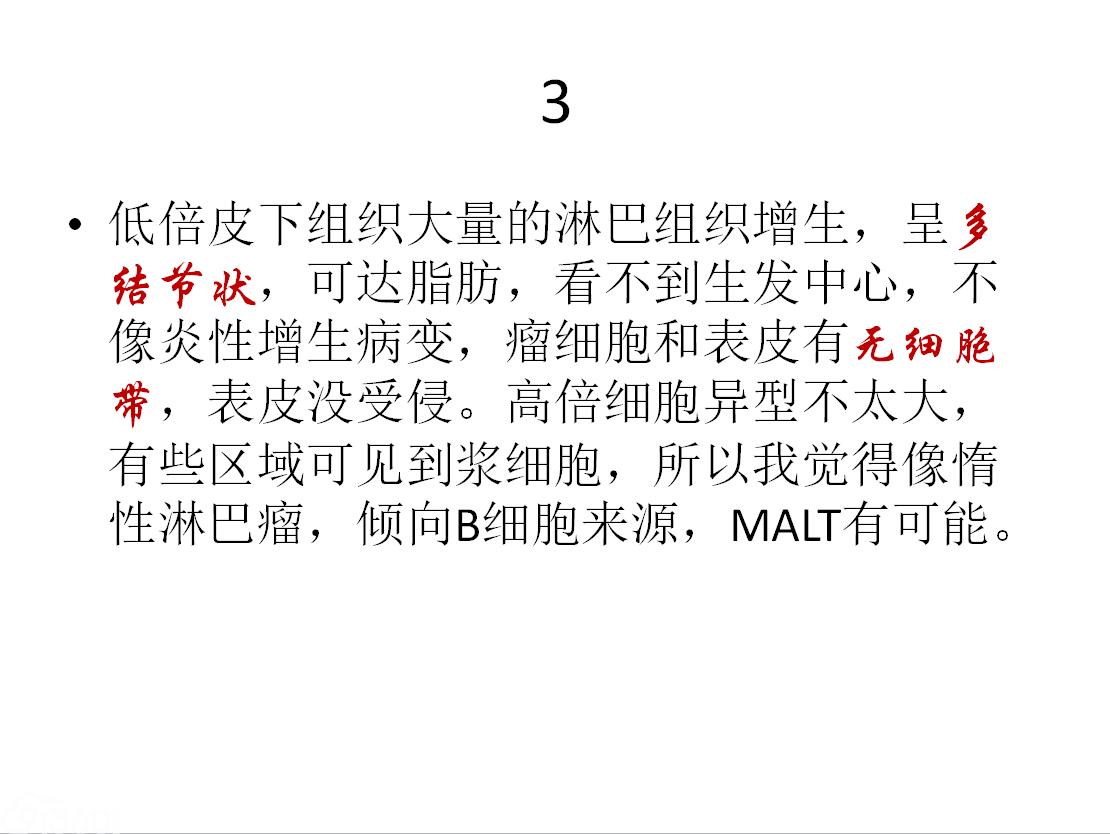 """陈国璋教授及卓华教授主讲的""""淋巴瘤病理诊断""""学习班病例讨论第四弹解读"""