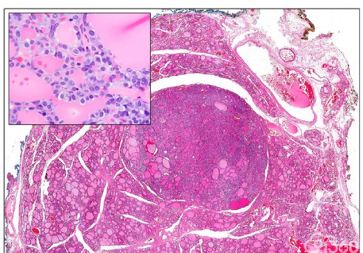 图1. 伴乳头状核特征的非浸润性滤泡型甲状腺肿瘤(NIFTP)。