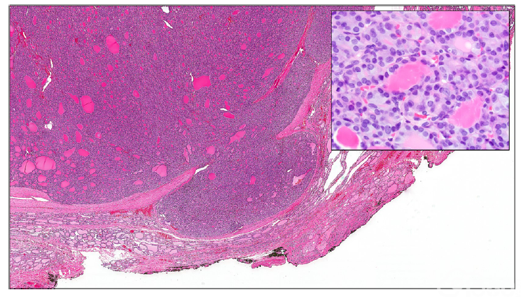 图2. 包裹性滤泡型甲状腺乳头状癌伴局灶性肿瘤包膜浸润。