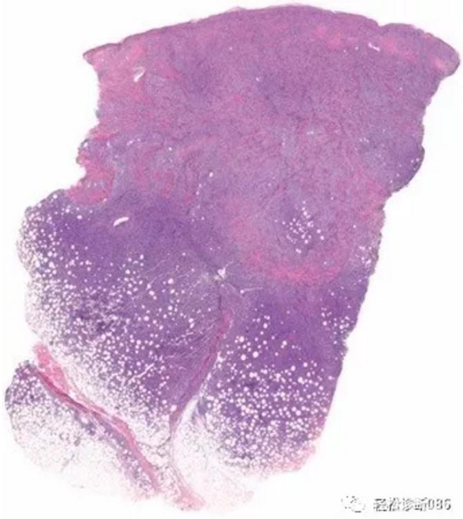 皮肤淋巴瘤(11)——T-NHL(罕见亚型)