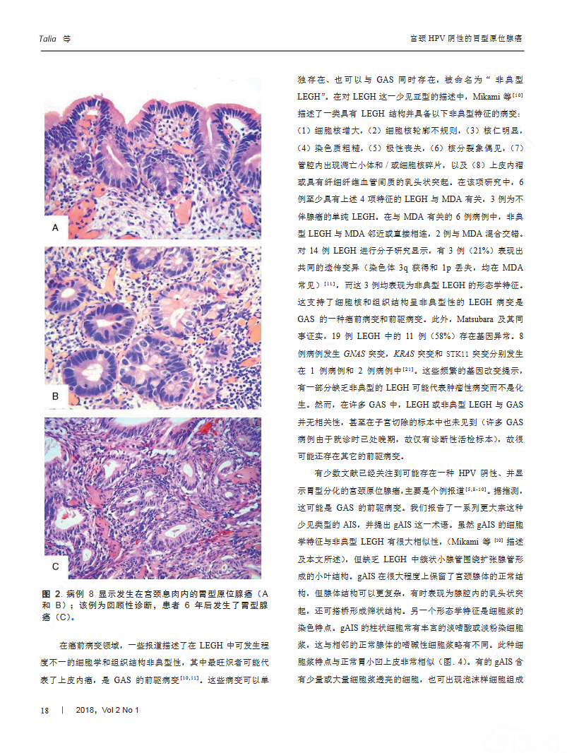 宫颈HPV阴性的胃型原位腺癌——一组伴有胃肠分化的罕见病变