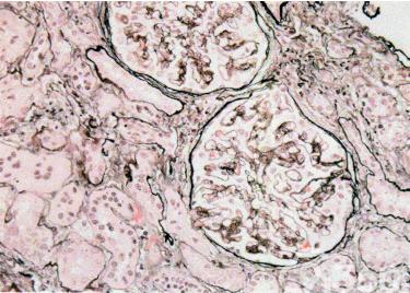 图1 Pierson综合征轻度局灶阶段性系膜基质增加(Jones银染)