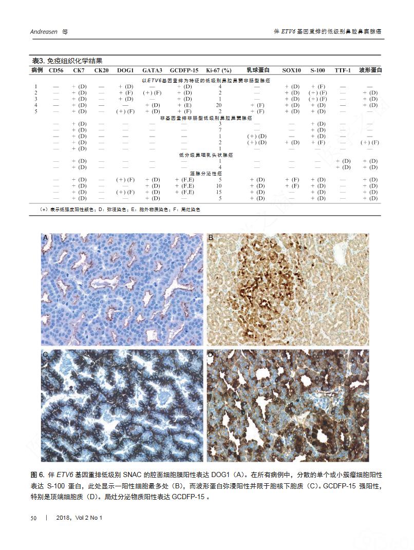 以ETV6基因重排为特征的鼻腔鼻窦低级别非肠型腺癌独特亚型——一种局限于鼻腔鼻窦的新型基因易位相关癌