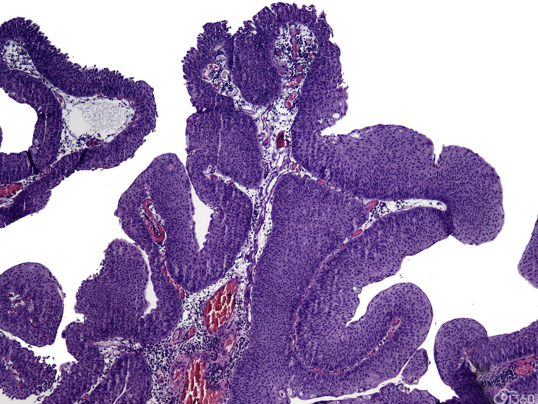低度恶性潜能乳头状尿路上皮肿瘤、恶性潜能未定的尿路上皮增生、尿路上皮异型增生和尿路上皮乳头状瘤的诊断困难:目前文献的复习