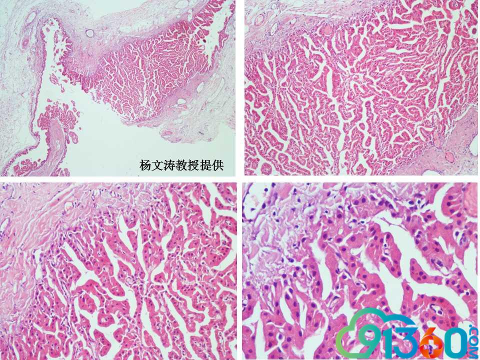 乳腺病理诊断中的困惑和思考——肌上皮在诊断中的价值