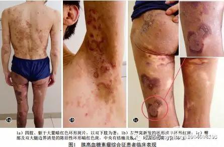 皮肤科情况