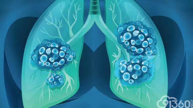 哪些癌症可以有效筛查?