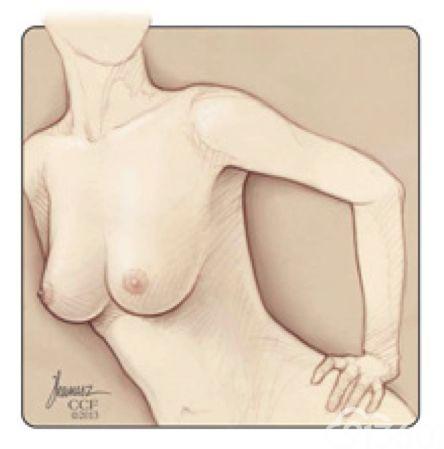 女子必修课:乳房自检的正确姿势