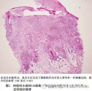 种痘样水疱样EB病毒感染相关淋巴细胞增生性疾病