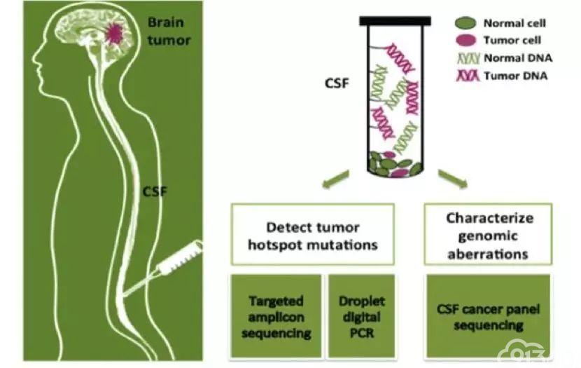 脑脊液基因检测
