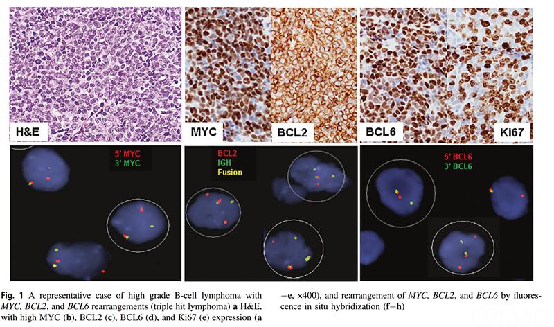 40例MYC/BCL2/BCL6三打击淋巴瘤:与MYC/BCL2和MYC/BCL6双打击淋巴瘤的对比研究(主要内容翻译)