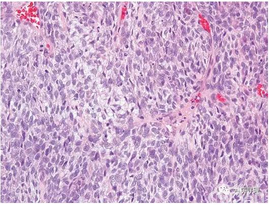 两种新报道的未分化肉瘤