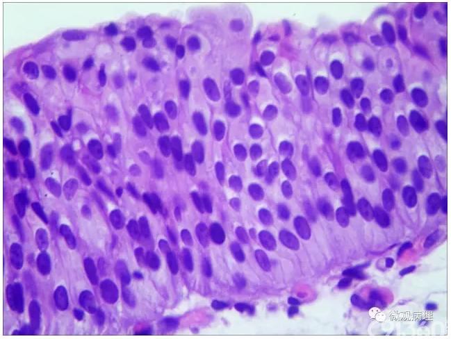 三个一致和不乱:反应性尿路上皮非典型增生