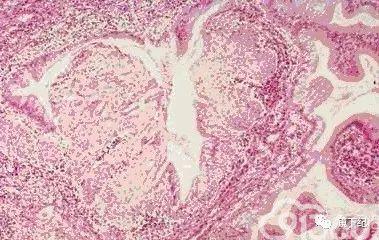 宫颈炎看到的切片