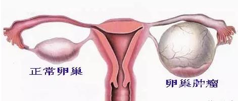 图6 卵巢肿瘤与正常卵巢比较