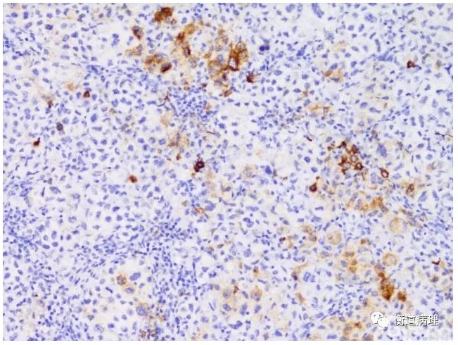 弥漫性大B细胞淋巴瘤(2017版WHO更新要点及间变变型简述)