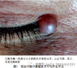【病例报告】顶泌汗腺汗囊瘤一例