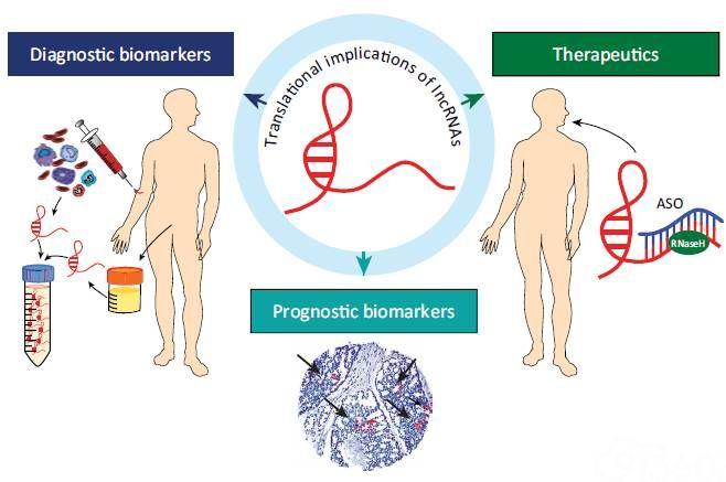 非编码RNA:lncRNA是如何搭上癌症的,看完这篇就懂了