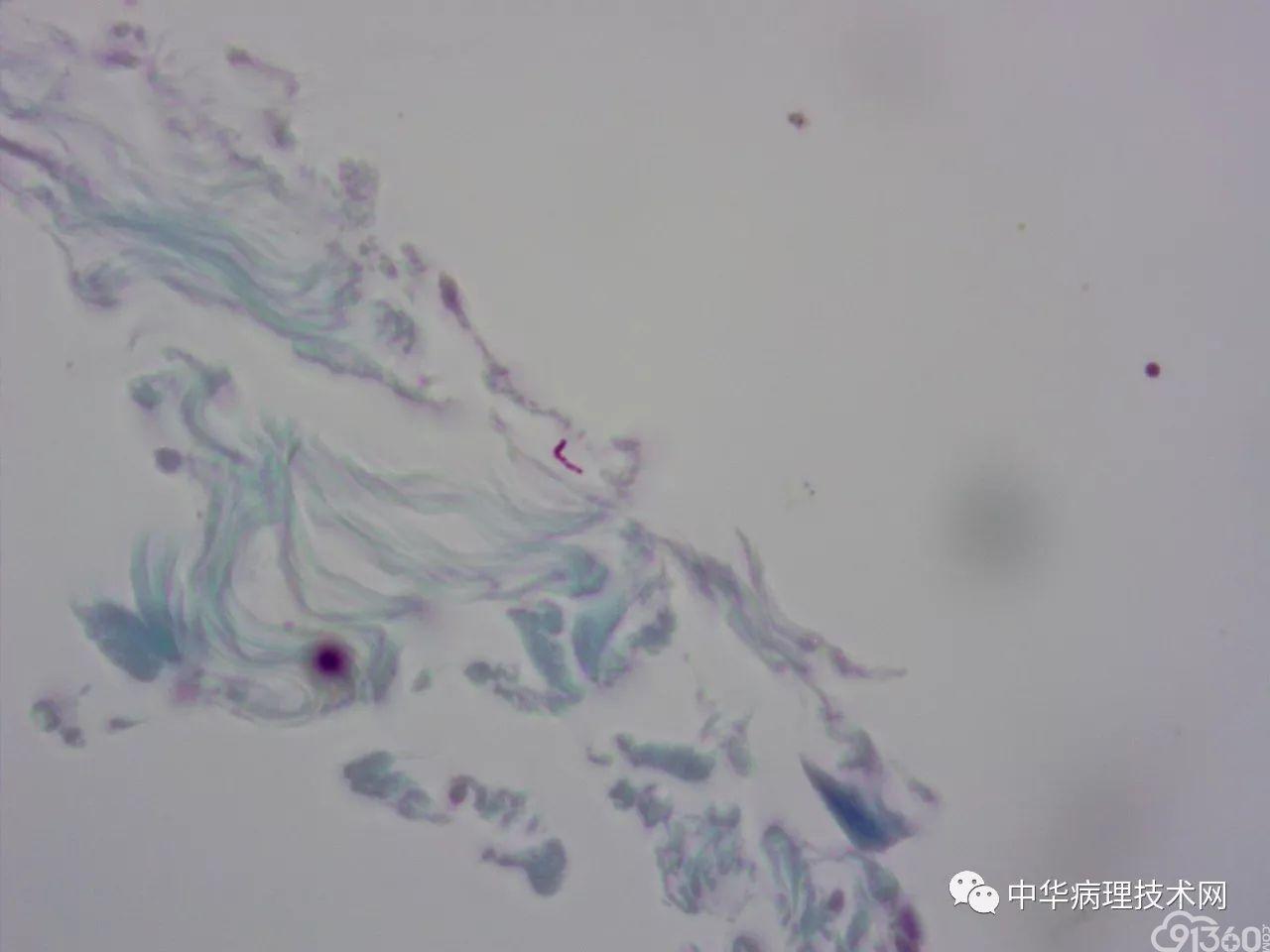 如何避免抗酸染色假阳性