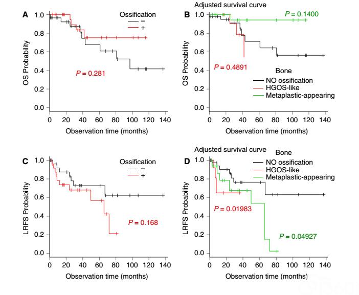 去分化脂肪肉瘤中的成骨分化:36例研究并与无骨化的去分化脂肪肉瘤的比较