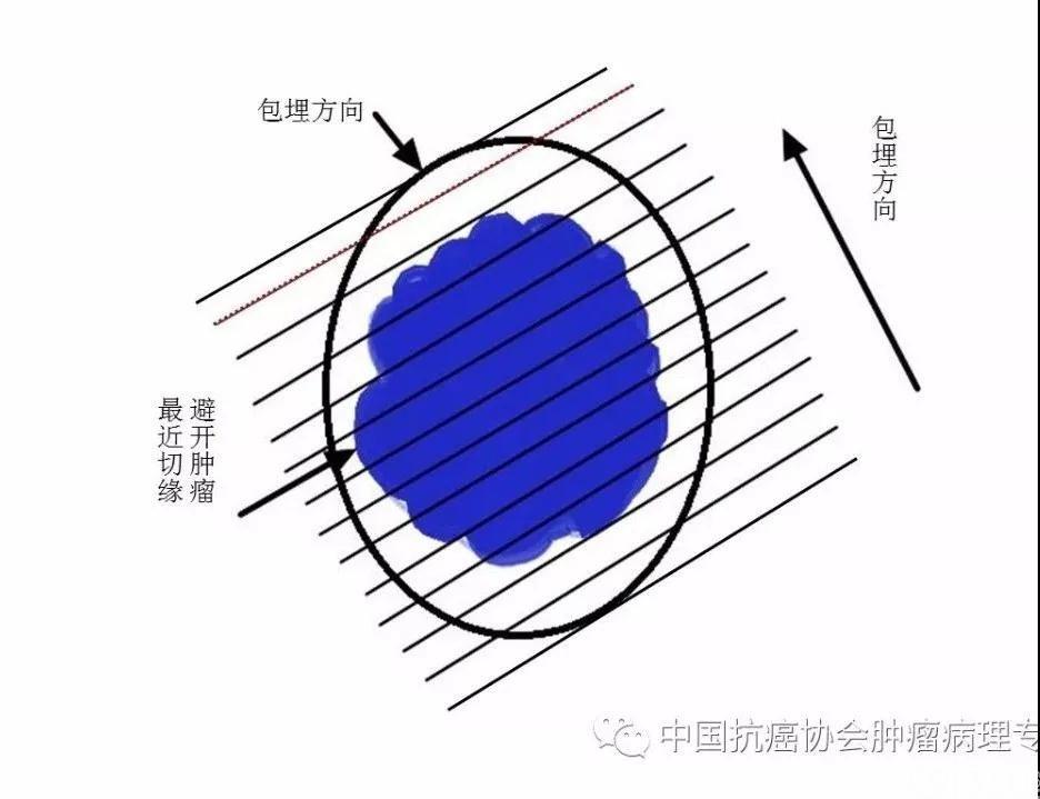 图3内镜下黏膜切除术/内镜下黏膜剥脱术标本取材示意图