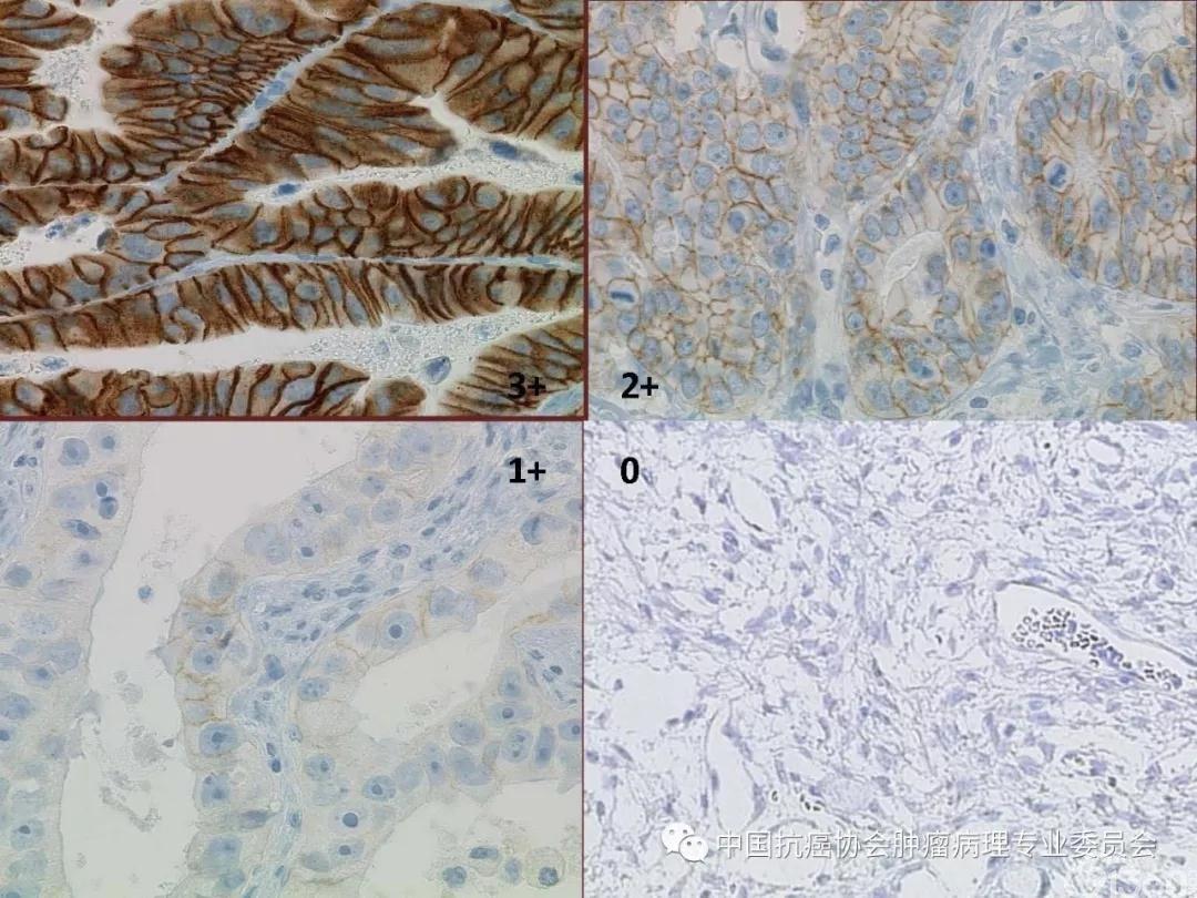 肿瘤病理规范化诊断标准 第4部分:胃癌病理诊断标准