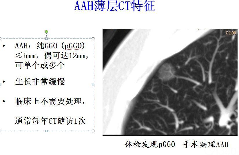 肺癌浸润前病变-不典型腺瘤样增生